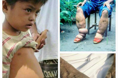 Article : Toutes ces maladies négligées à tort